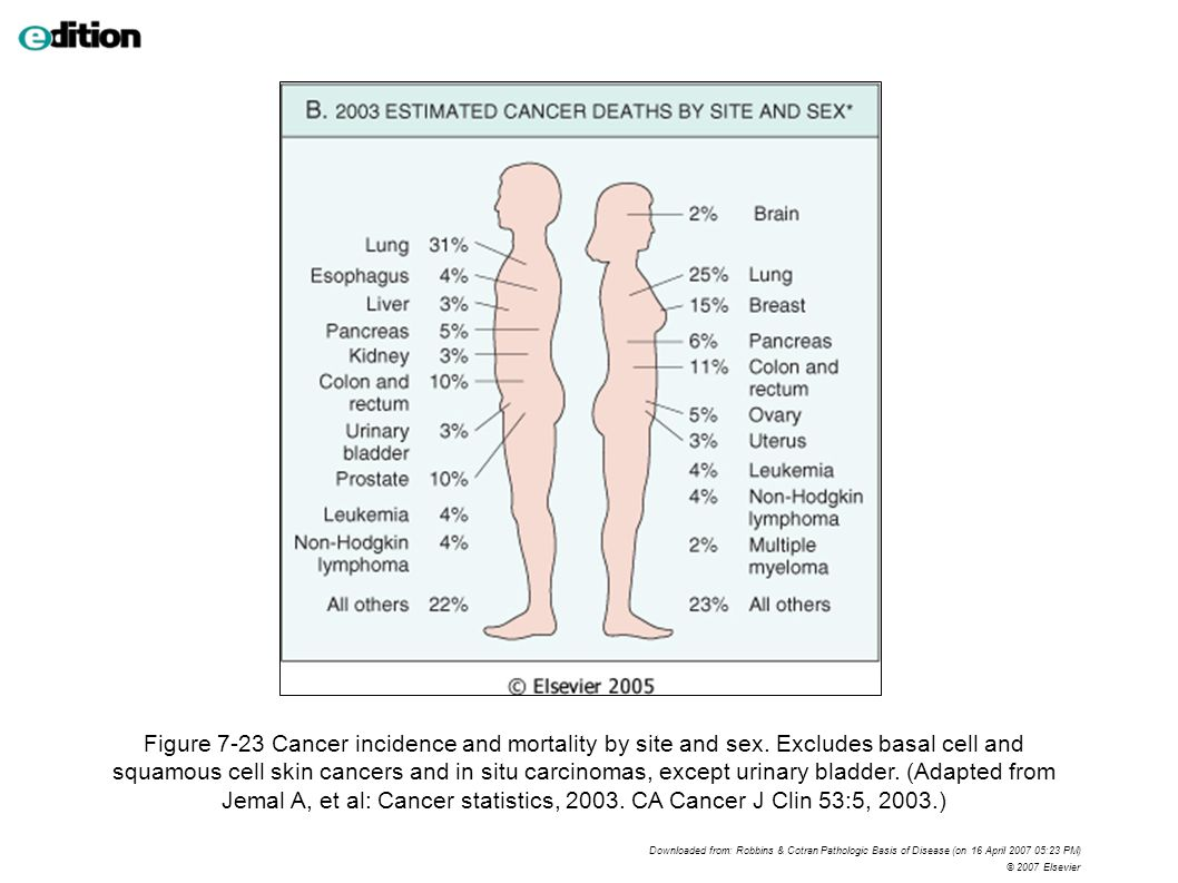 Figure 7-23 Cancer incidence and mortality by site and sex.