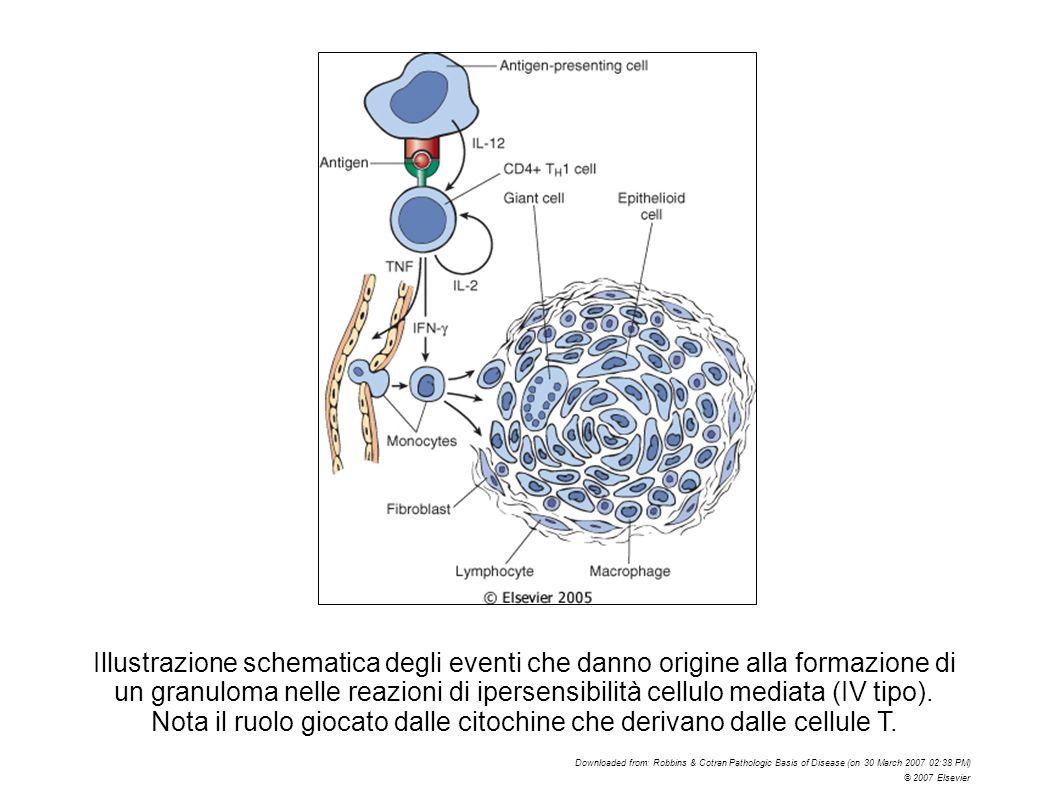 Illustrazione schematica degli eventi che danno origine alla formazione di un granuloma nelle reazioni di ipersensibilità cellulo mediata (IV tipo). N