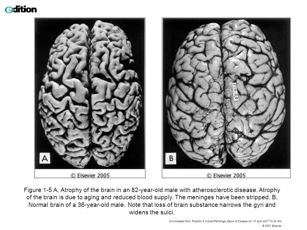 Figure 1-5 A, Atrophy of the brain in an 82-year-old male with atherosclerotic disease.