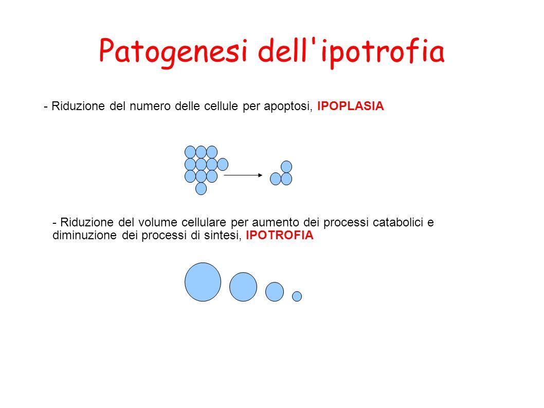 Patogenesi dell'ipotrofia - Riduzione del numero delle cellule per apoptosi, IPOPLASIA - Riduzione del volume cellulare per aumento dei processi catab