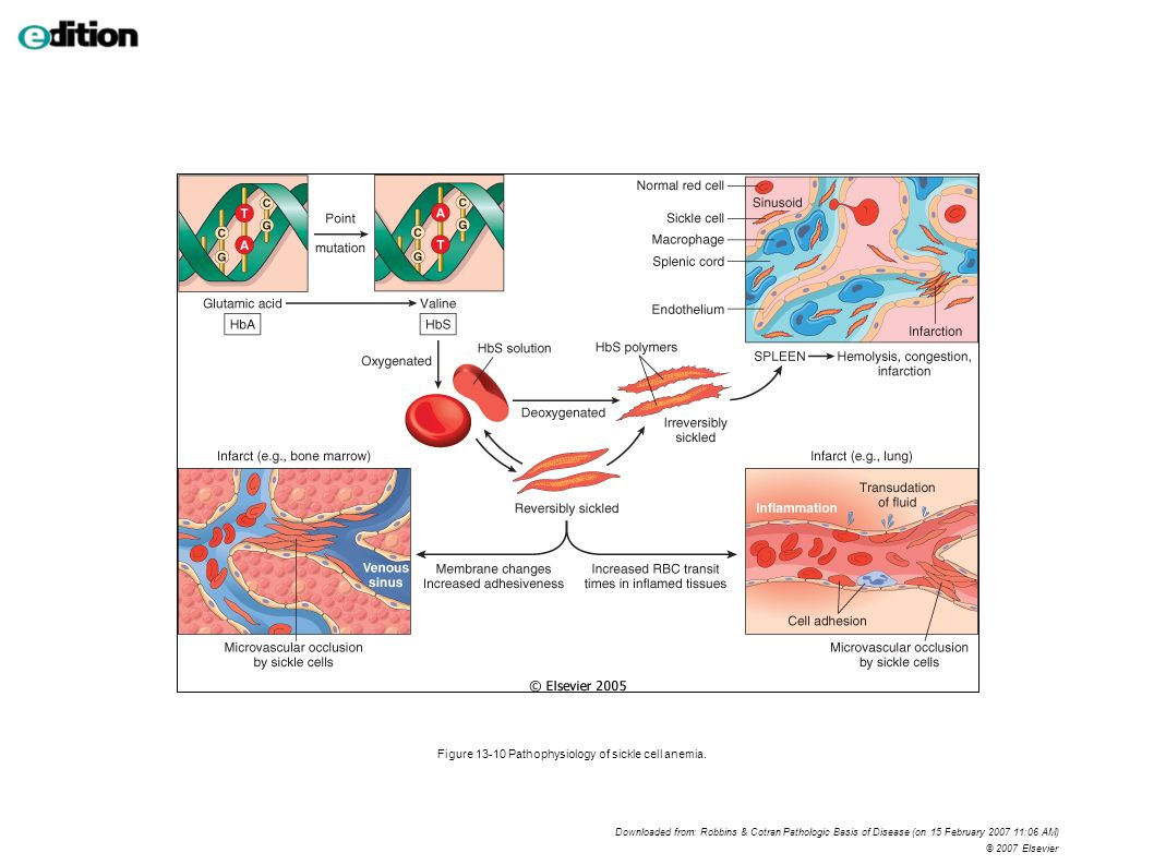 Figure 13-10 Pathophysiology of sickle cell anemia. Downloaded from: Robbins & Cotran Pathologic Basis of Disease (on 15 February 2007 11:06 AM) © 200
