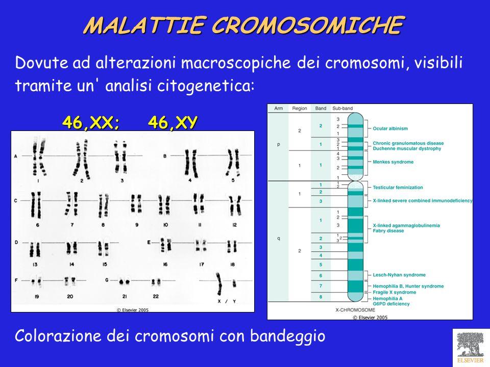 MALATTIE CROMOSOMICHE 46,XX; 46,XY Dovute ad alterazioni macroscopiche dei cromosomi, visibili tramite un' analisi citogenetica: Colorazione dei cromo