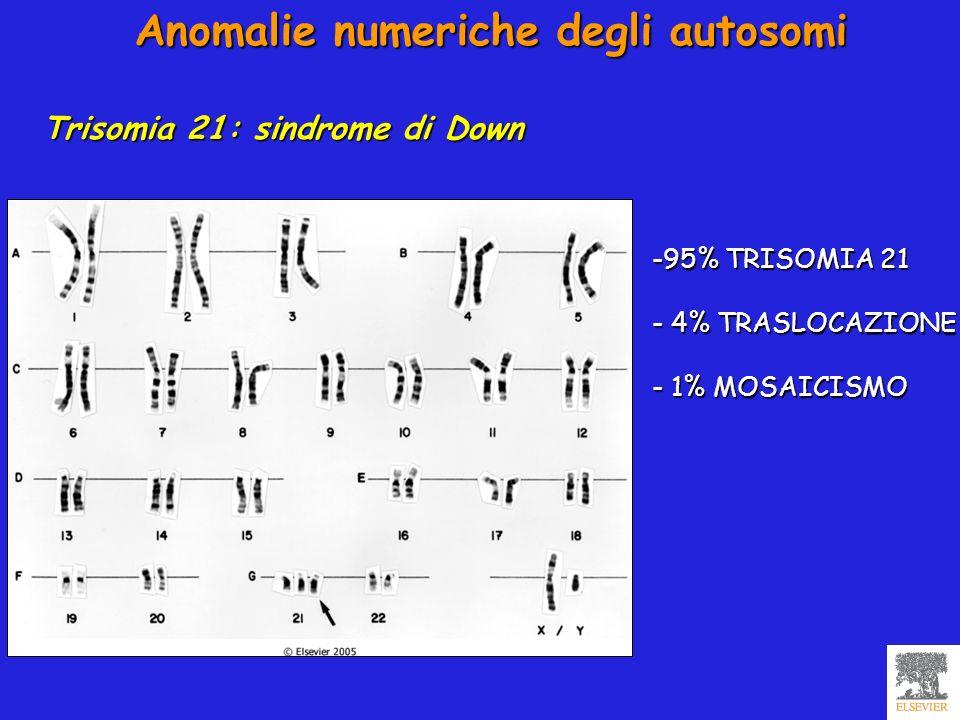 Anomalie numeriche degli autosomi Trisomia 21: sindrome di Down -95% TRISOMIA 21 - 4% TRASLOCAZIONE - 1% MOSAICISMO