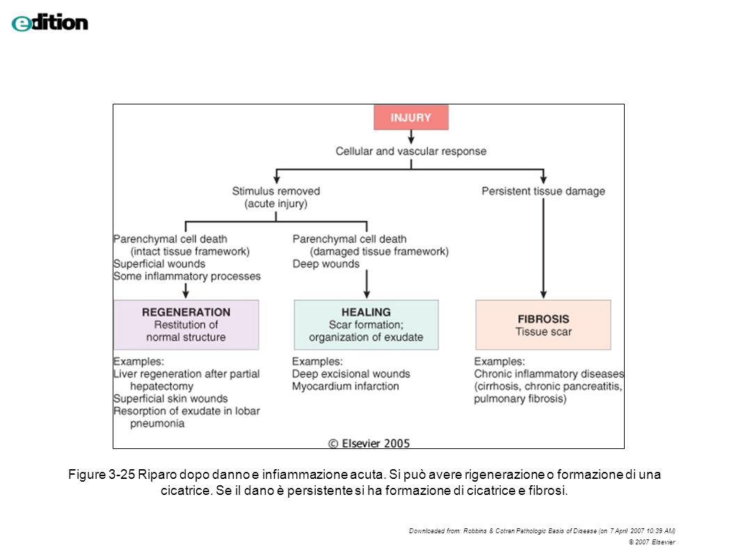 Figure 3-25 Riparo dopo danno e infiammazione acuta. Si può avere rigenerazione o formazione di una cicatrice. Se il dano è persistente si ha formazio
