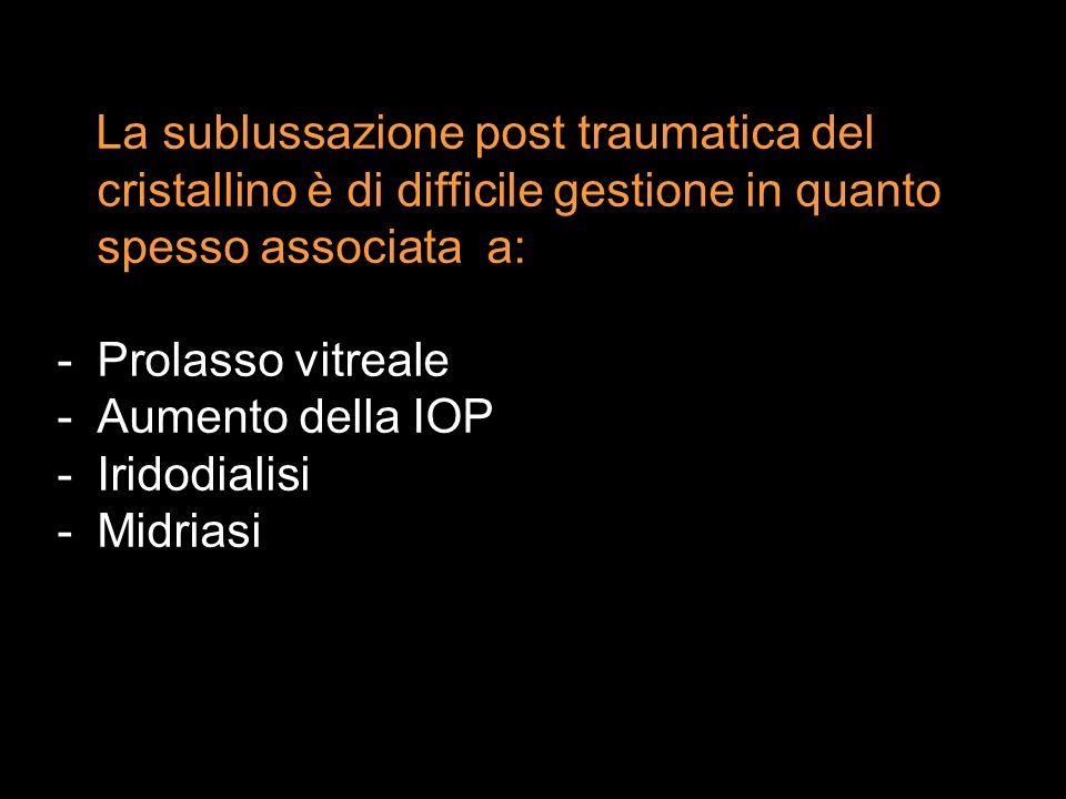 La sublussazione post traumatica del cristallino è di difficile gestione in quanto spesso associata a: -Prolasso vitreale -Aumento della IOP -Iridodia