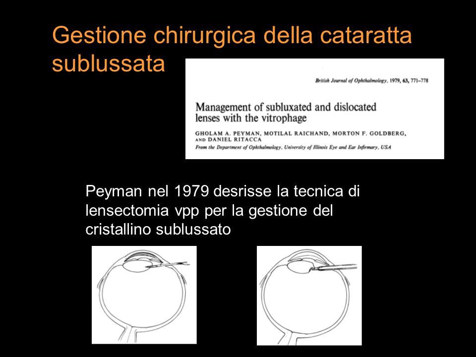 Peyman nel 1979 desrisse la tecnica di lensectomia vpp per la gestione del cristallino sublussato Gestione chirurgica della cataratta sublussata