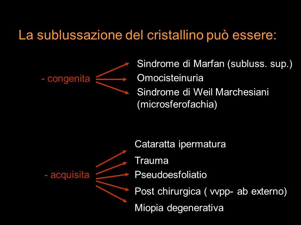 La sublussazione del cristallino può essere: - congenita - acquisita Sindrome di Marfan (subluss. sup.) Sindrome di Weil Marchesiani (microsferofachia