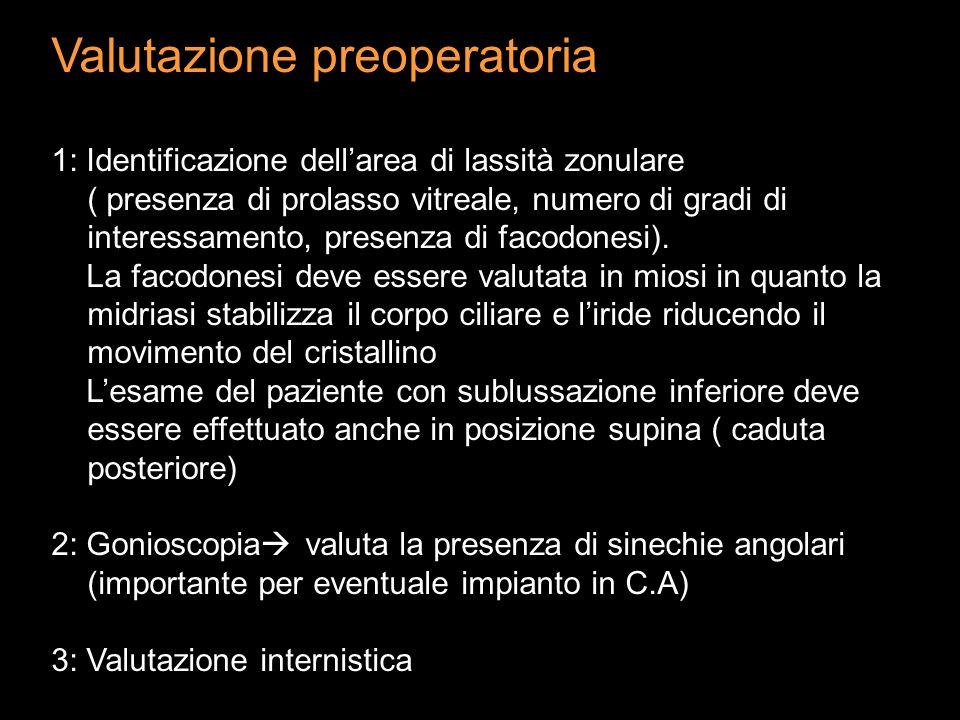Valutazione preoperatoria 1: Identificazione dellarea di lassità zonulare ( presenza di prolasso vitreale, numero di gradi di interessamento, presenza