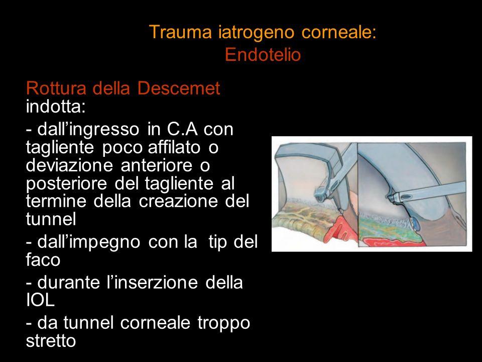 Rottura della Descemet indotta: - dallingresso in C.A con tagliente poco affilato o deviazione anteriore o posteriore del tagliente al termine della c