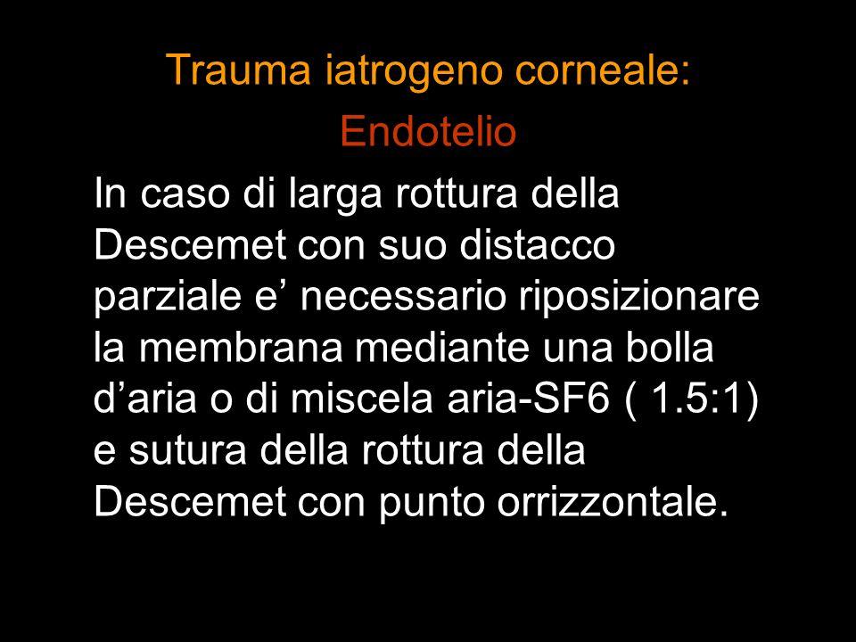 Trauma iatrogeno corneale: Endotelio In caso di larga rottura della Descemet con suo distacco parziale e necessario riposizionare la membrana mediante
