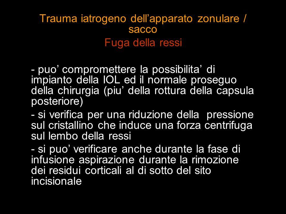 Trauma iatrogeno dellapparato zonulare / sacco Fuga della ressi - puo compromettere la possibilita di impianto della IOL ed il normale proseguo della