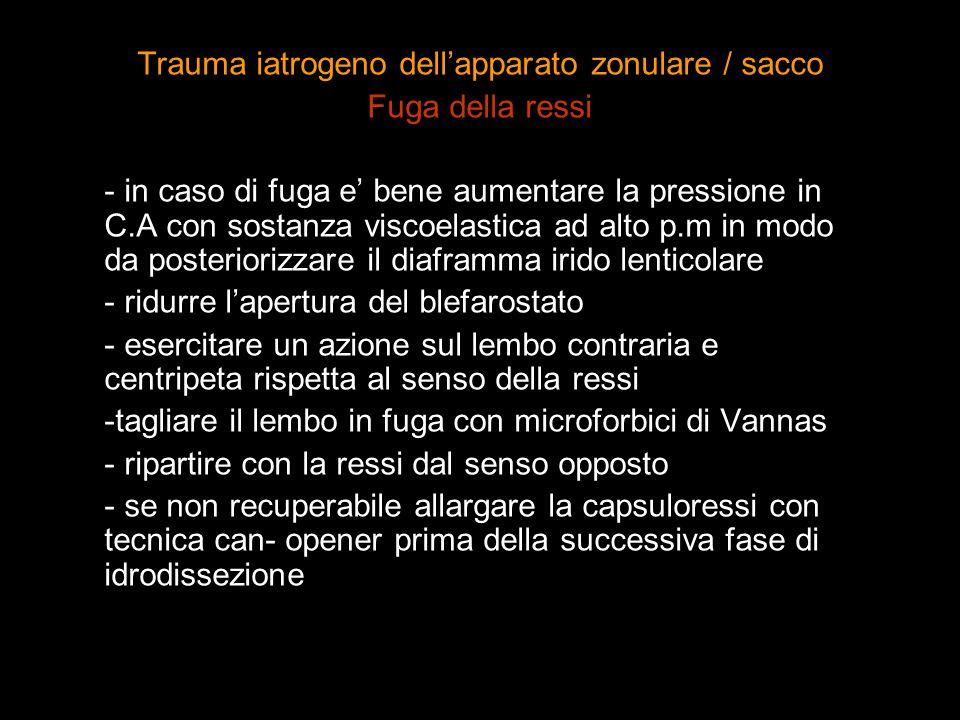 Trauma iatrogeno dellapparato zonulare / sacco Fuga della ressi - in caso di fuga e bene aumentare la pressione in C.A con sostanza viscoelastica ad a
