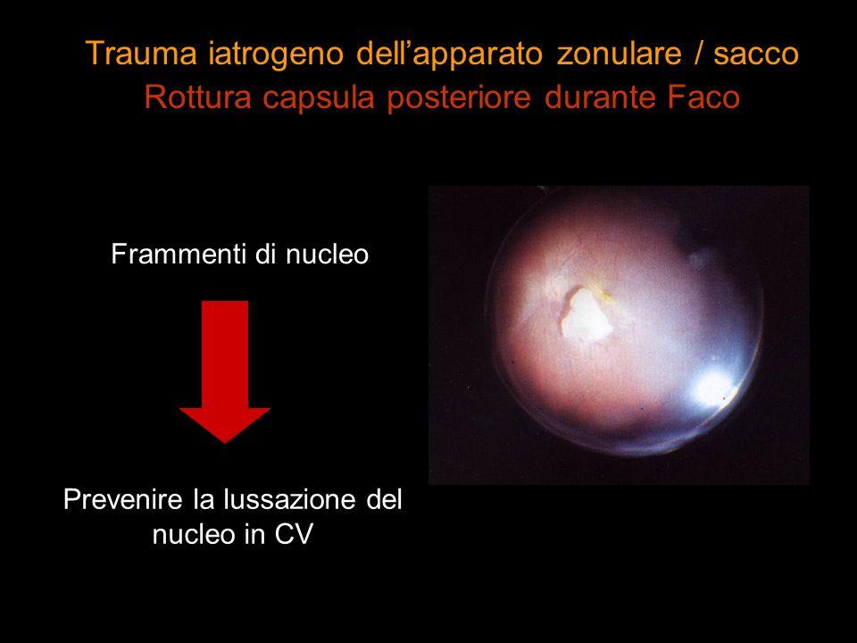 Frammenti di nucleo Prevenire la lussazione del nucleo in CV Trauma iatrogeno dellapparato zonulare / sacco Rottura capsula posteriore durante Faco