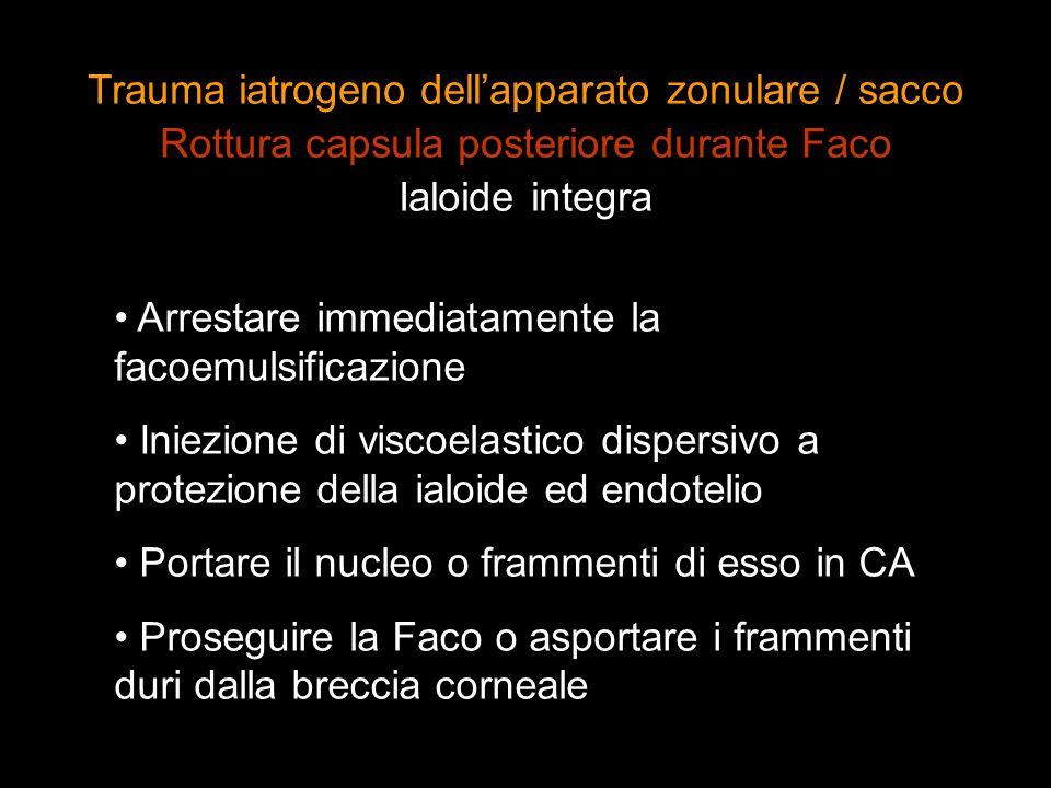 Arrestare immediatamente la facoemulsificazione Iniezione di viscoelastico dispersivo a protezione della ialoide ed endotelio Portare il nucleo o fram