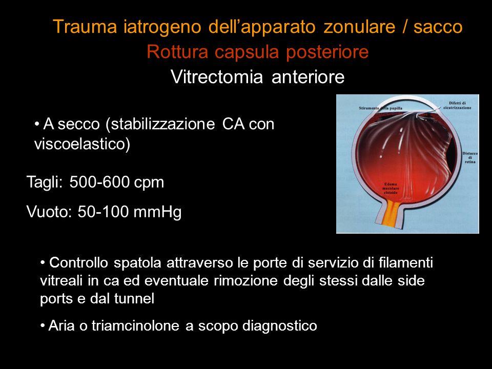 A secco (stabilizzazione CA con viscoelastico) Tagli: 500-600 cpm Vuoto: 50-100 mmHg Controllo spatola attraverso le porte di servizio di filamenti vi
