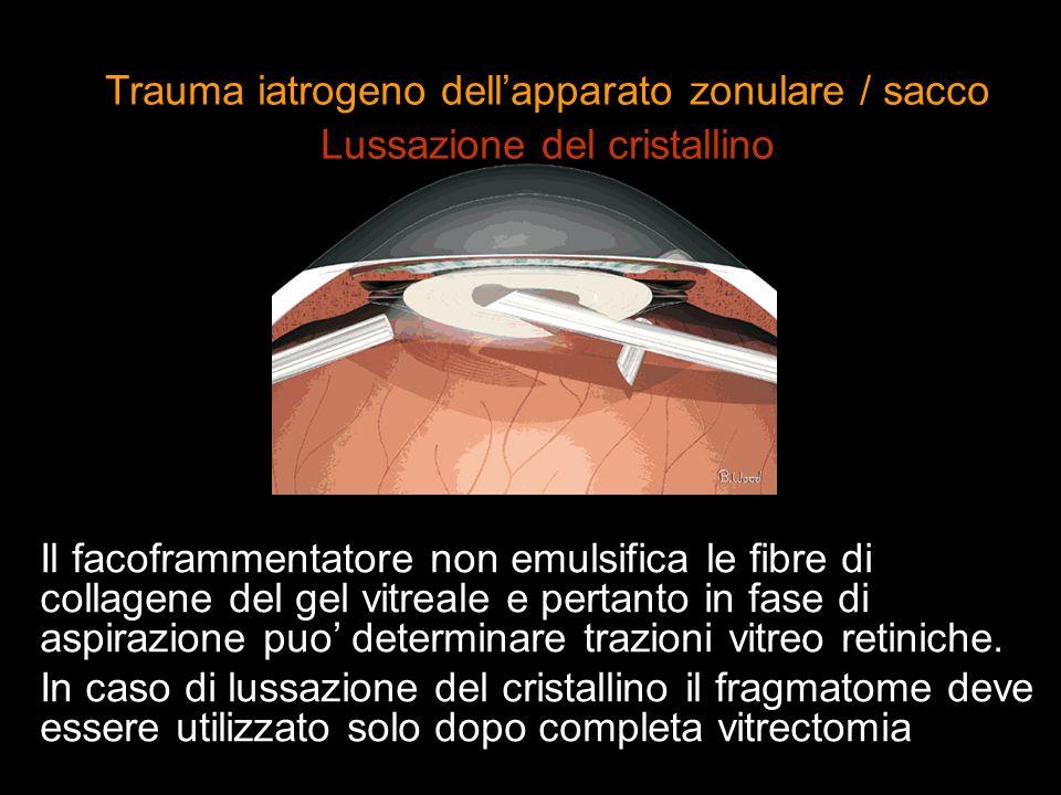 Il facoframmentatore non emulsifica le fibre di collagene del gel vitreale e pertanto in fase di aspirazione puo determinare trazioni vitreo retiniche
