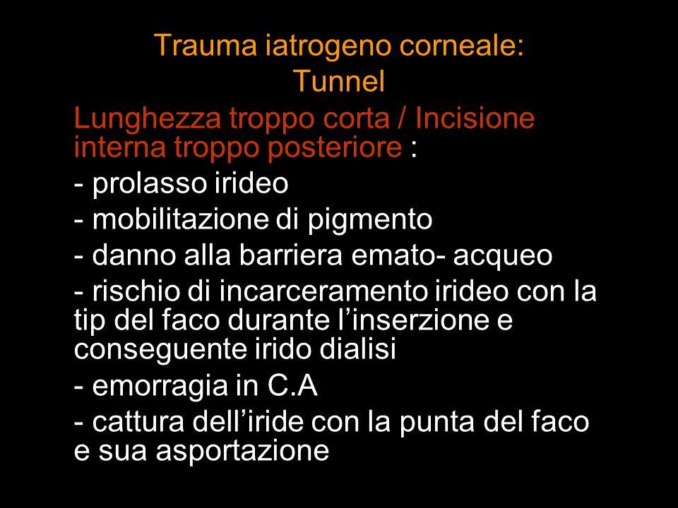 Trauma iatrogeno corneale: Tunnel Lunghezza troppo corta / Incisione interna troppo posteriore : - prolasso irideo - mobilitazione di pigmento - danno