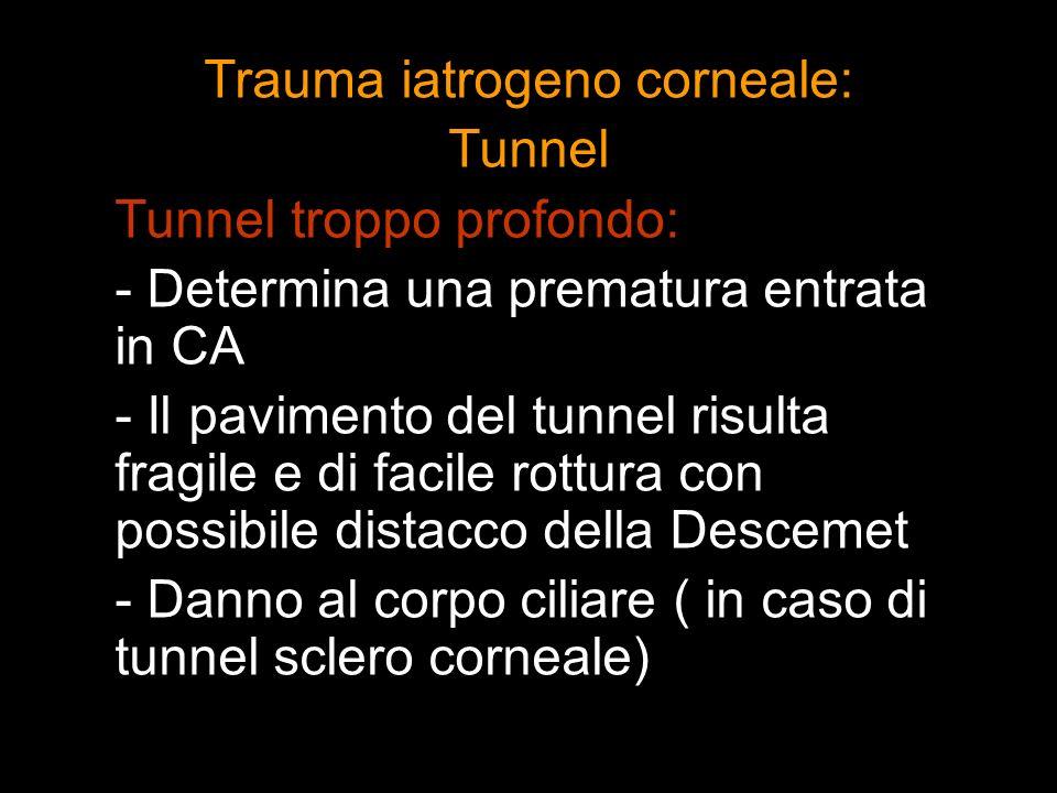 Trauma iatrogeno corneale: Tunnel Tunnel troppo profondo: - Determina una prematura entrata in CA - Il pavimento del tunnel risulta fragile e di facil
