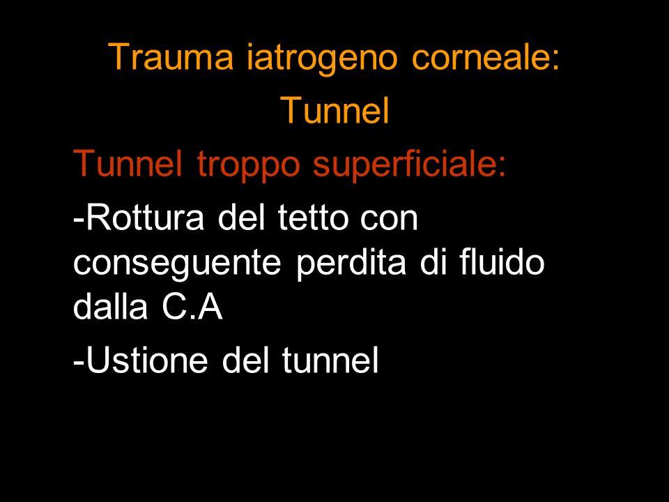 Trauma iatrogeno corneale: Tunnel Tunnel troppo superficiale: -Rottura del tetto con conseguente perdita di fluido dalla C.A -Ustione del tunnel