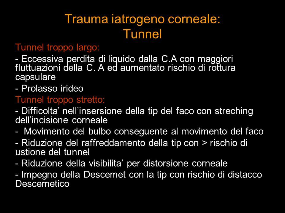 Trauma iatrogeno corneale: Tunnel Tunnel troppo largo: - Eccessiva perdita di liquido dalla C.A con maggiori fluttuazioni della C. A ed aumentato risc