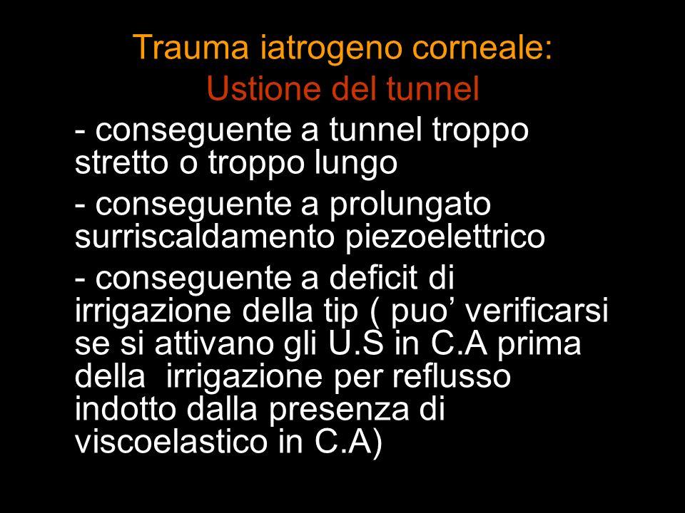 Trauma iatrogeno corneale: Ustione del tunnel - conseguente a tunnel troppo stretto o troppo lungo - conseguente a prolungato surriscaldamento piezoel