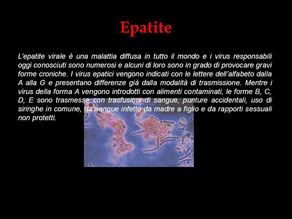 Epatite Lepatite virale è una malattia diffusa in tutto il mondo e i virus responsabili oggi conosciuti sono numerosi e alcuni di loro sono in grado d