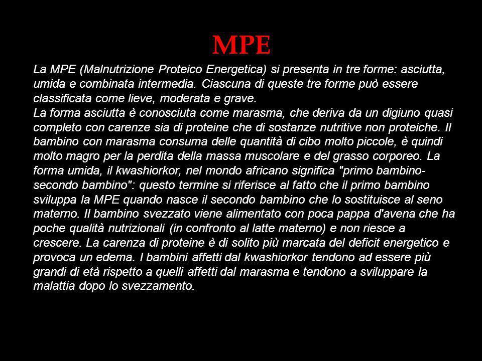 MPE La MPE (Malnutrizione Proteico Energetica) si presenta in tre forme: asciutta, umida e combinata intermedia. Ciascuna di queste tre forme può esse