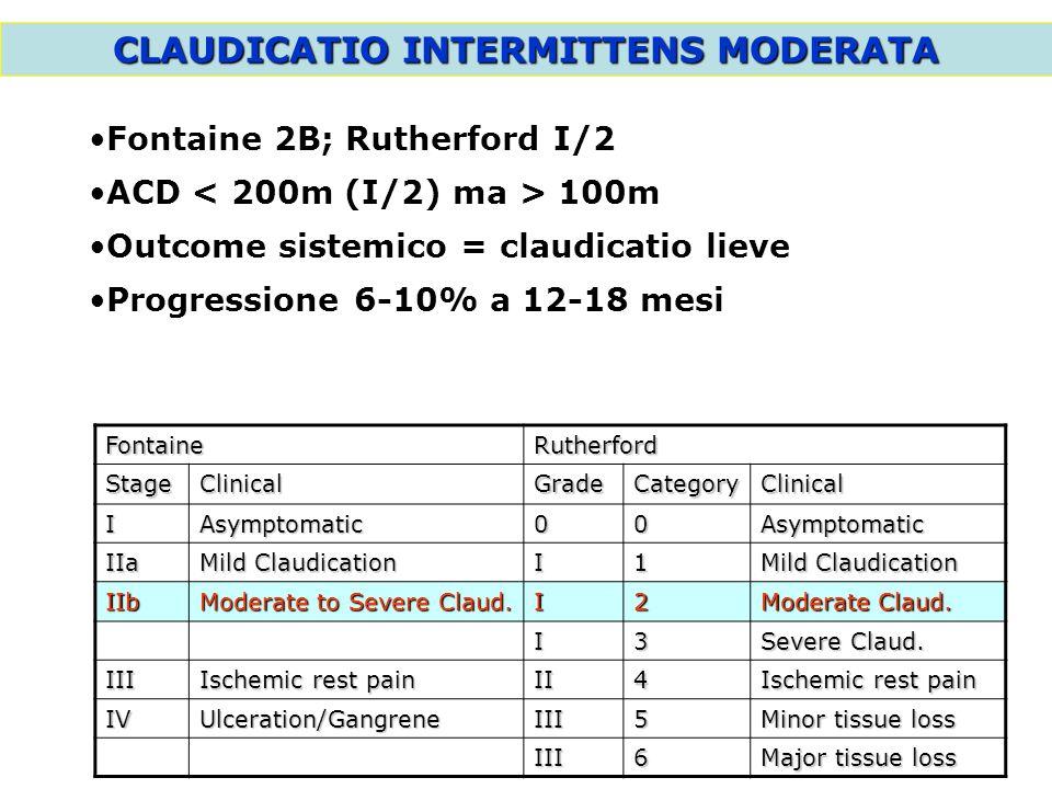 CLAUDICATIO INTERMITTENS MODERATA Fontaine 2B; Rutherford I/2 ACD 100m Outcome sistemico = claudicatio lieve Progressione 6-10% a 12-18 mesi FontaineR