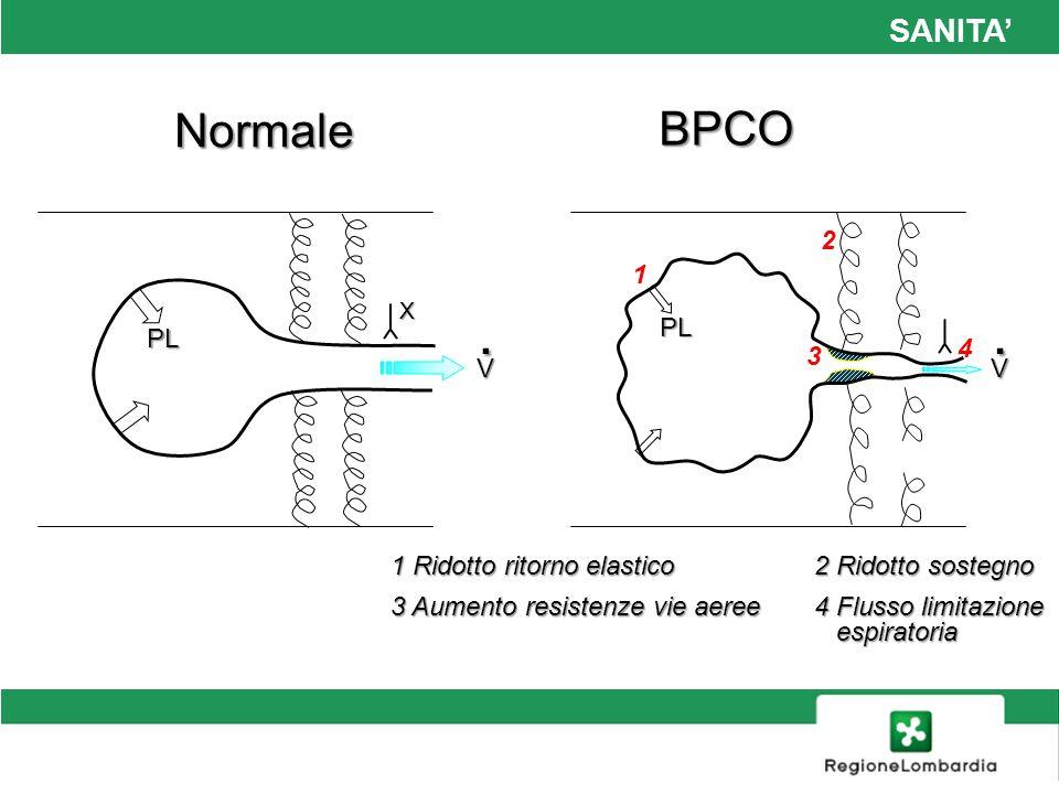 SANITA Normale BPCO 1 Ridotto ritorno elastico 2 Ridotto sostegno 3 Aumento resistenze vie aeree 4 Flusso limitazione espiratoria PL V. PL V. X 1 2 3