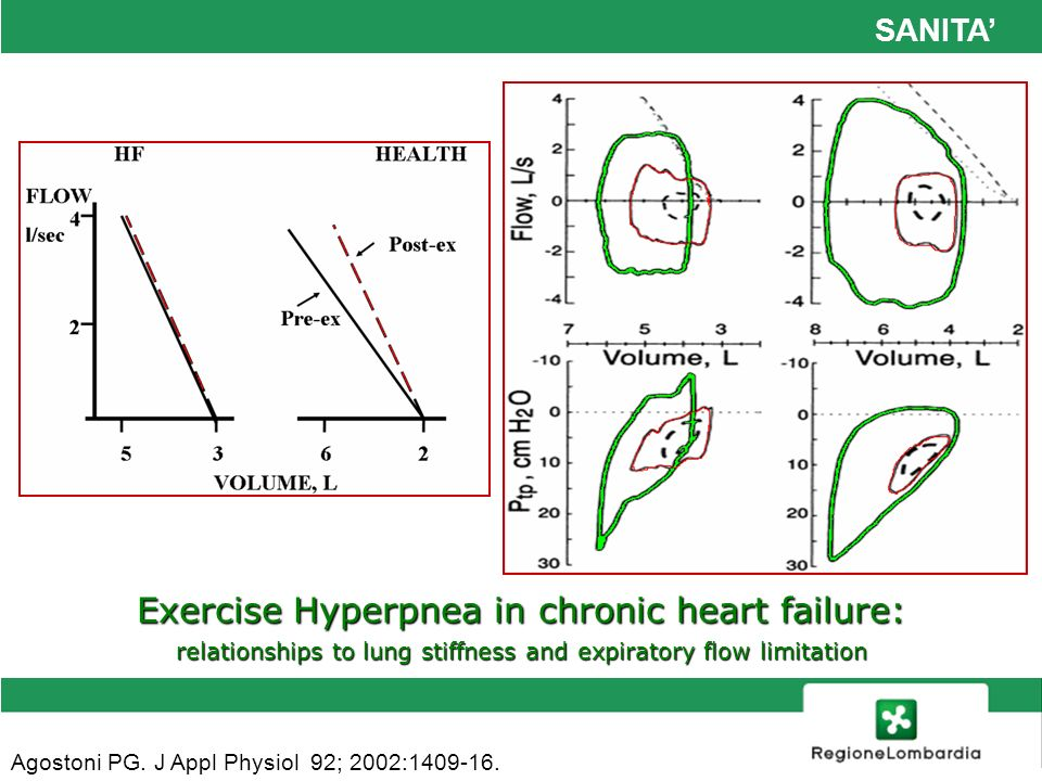 SANITA Agostoni PG. J Appl Physiol 92; 2002:1409-16. Exercise Hyperpnea in chronic heart failure: relationships to lung stiffness and expiratory flow