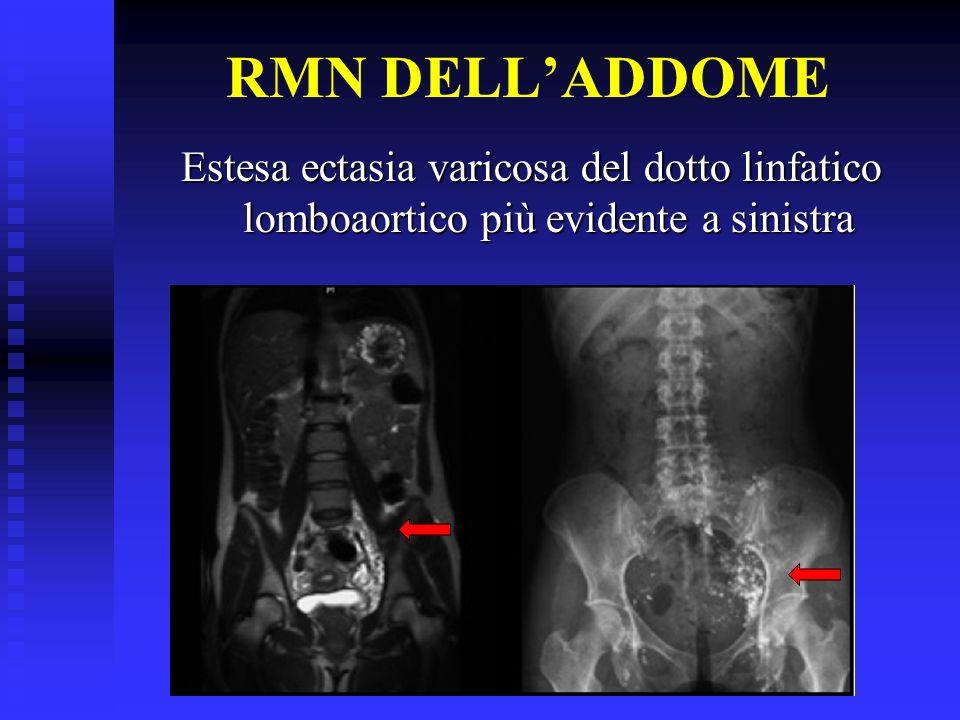DIAGNOSI Linfangioma congenito con lesione che si estende fino allorifizio ureterale in vescica La linfografia conferma successivamente la malformazione dei linfatici di sinistra