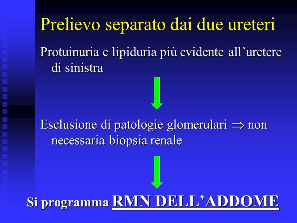 RMN DELLADDOME Estesa ectasia varicosa del dotto linfatico lomboaortico più evidente a sinistra