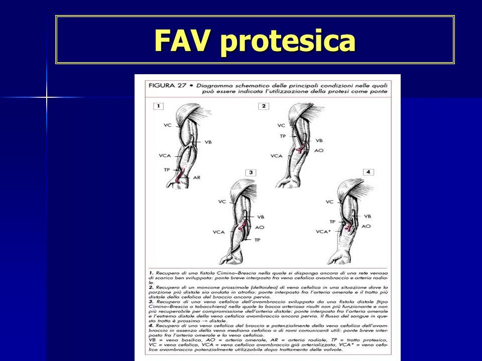 FAV protesica