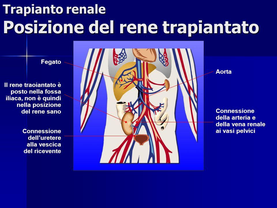 Trapianto renale Posizione del rene trapiantato Aorta Connessione della arteria e della vena renale ai vasi pelvici Fegato lI rene traoiantato è posto