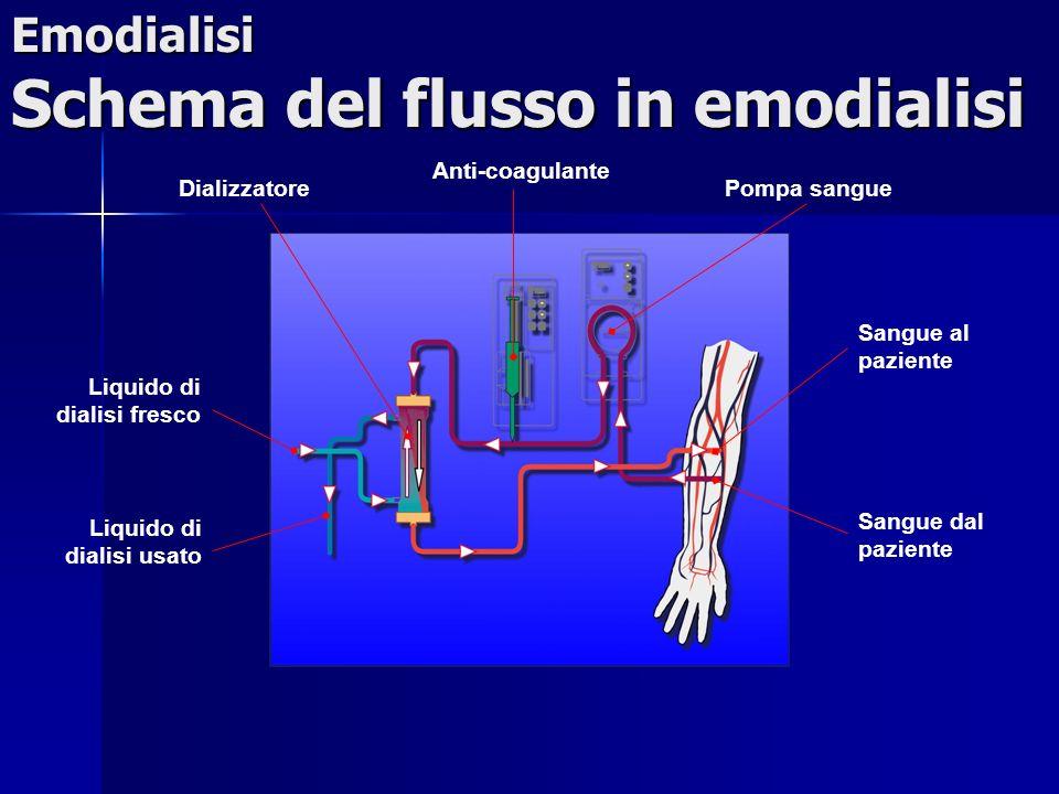 Emodialisi Schema del flusso in emodialisi Pompa sangue Anti-coagulante Sangue al paziente Sangue dal paziente Dializzatore Liquido di dialisi fresco