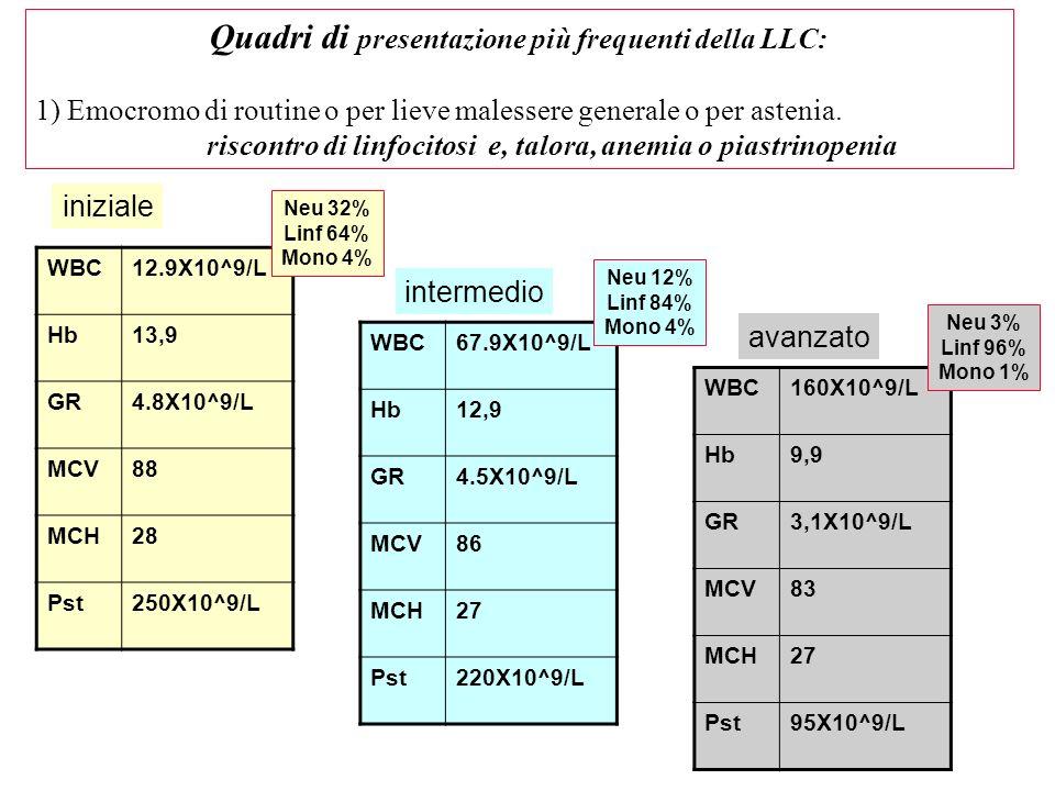 WBC12.9X10^9/L Hb13,9 GR4.8X10^9/L MCV88 MCH28 Pst250X10^9/L Quadri di presentazione più frequenti della LLC: 1) Emocromo di routine o per lieve malessere generale o per astenia.