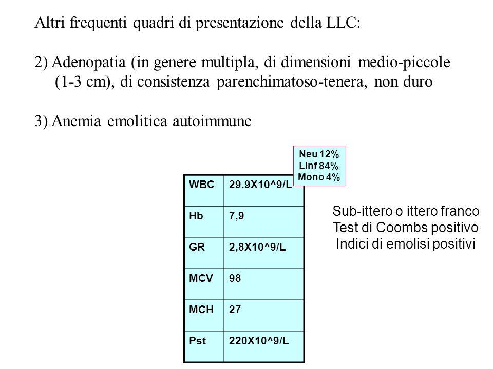 Altri frequenti quadri di presentazione della LLC: 2) Adenopatia (in genere multipla, di dimensioni medio-piccole (1-3 cm), di consistenza parenchimatoso-tenera, non duro 3) Anemia emolitica autoimmune WBC29.9X10^9/L Hb7,9 GR2,8X10^9/L MCV98 MCH27 Pst220X10^9/L Neu 12% Linf 84% Mono 4% Sub-ittero o ittero franco Test di Coombs positivo Indici di emolisi positivi