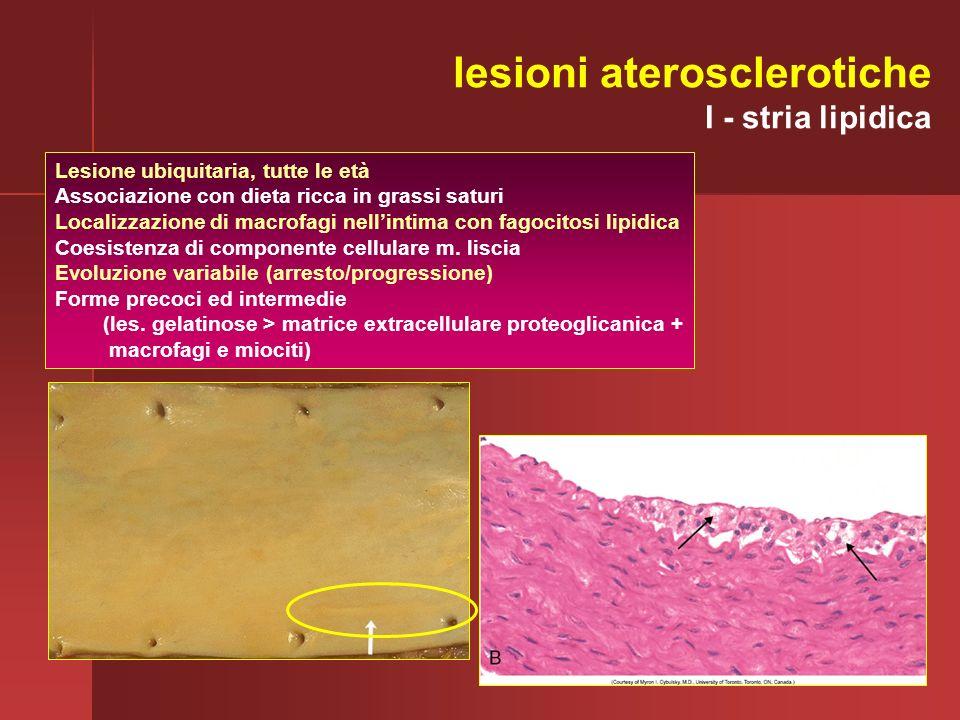 Lesione ubiquitaria, tutte le età Associazione con dieta ricca in grassi saturi Localizzazione di macrofagi nellintima con fagocitosi lipidica Coesist