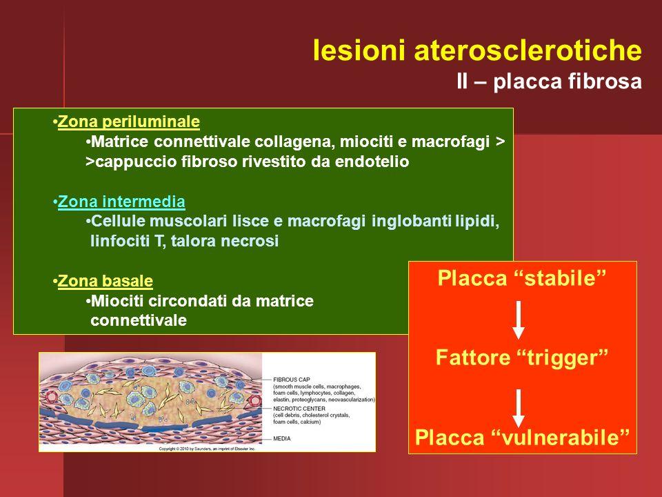 Zona periluminale Matrice connettivale collagena, miociti e macrofagi > >cappuccio fibroso rivestito da endotelio Zona intermedia Cellule muscolari li