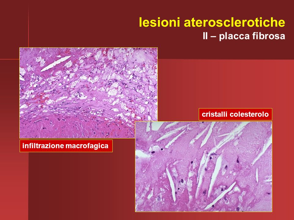 lesioni aterosclerotiche II – placca fibrosa infiltrazione macrofagica cristalli colesterolo