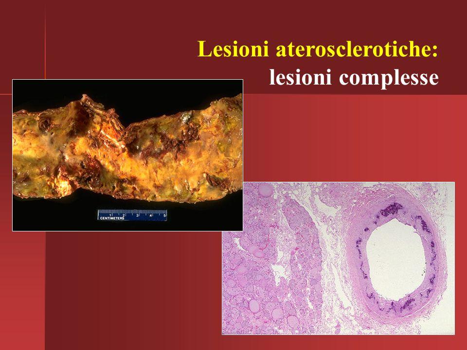 Lesioni aterosclerotiche: lesioni complesse