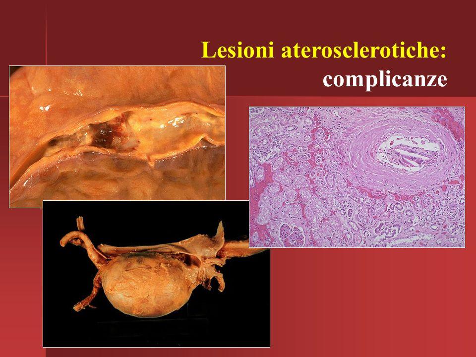 Lesioni aterosclerotiche: complicanze