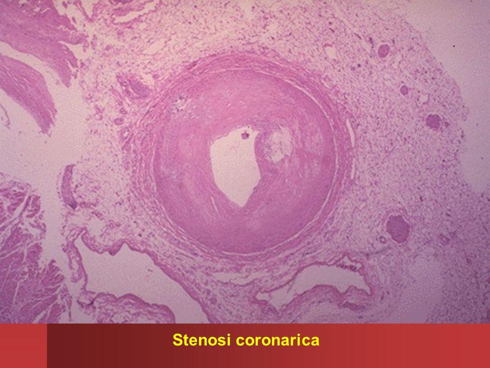 Stenosi coronarica