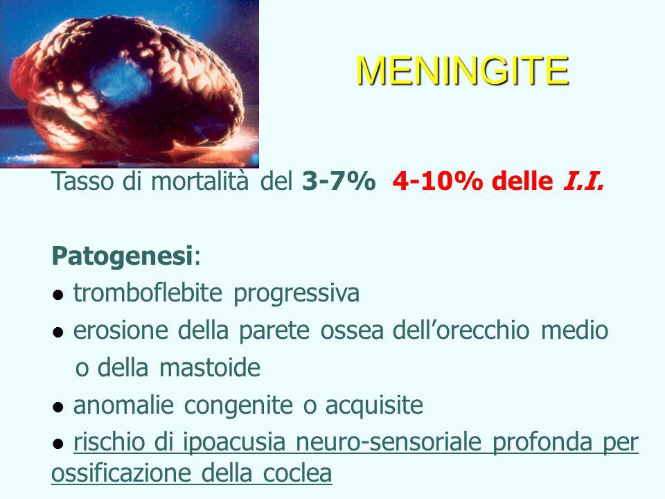 Tasso di mortalità del 3-7% 4-10% delle I.I. Patogenesi: tromboflebite progressiva erosione della parete ossea dellorecchio medio o della mastoide ano
