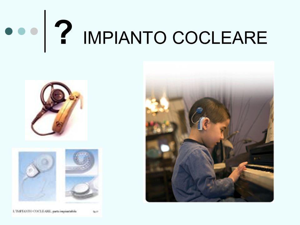 ? IMPIANTO COCLEARE