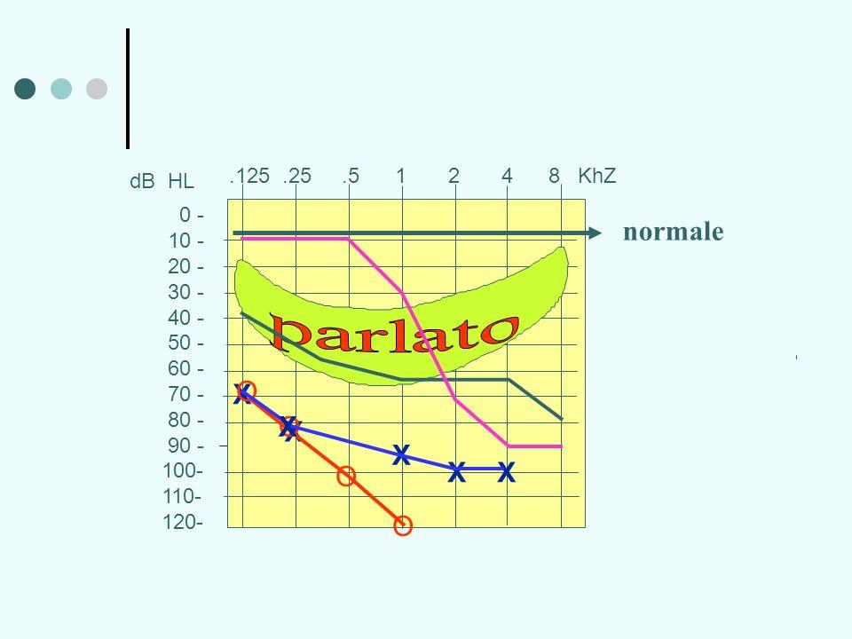 0 - 10 - 20 - 30 - 40 - 50 - 60 - 70 - 80 - 90 - 100- 110- 120-.125.25.5 1 2 4 8 KhZ dB HL X X X O O X X O O X normale