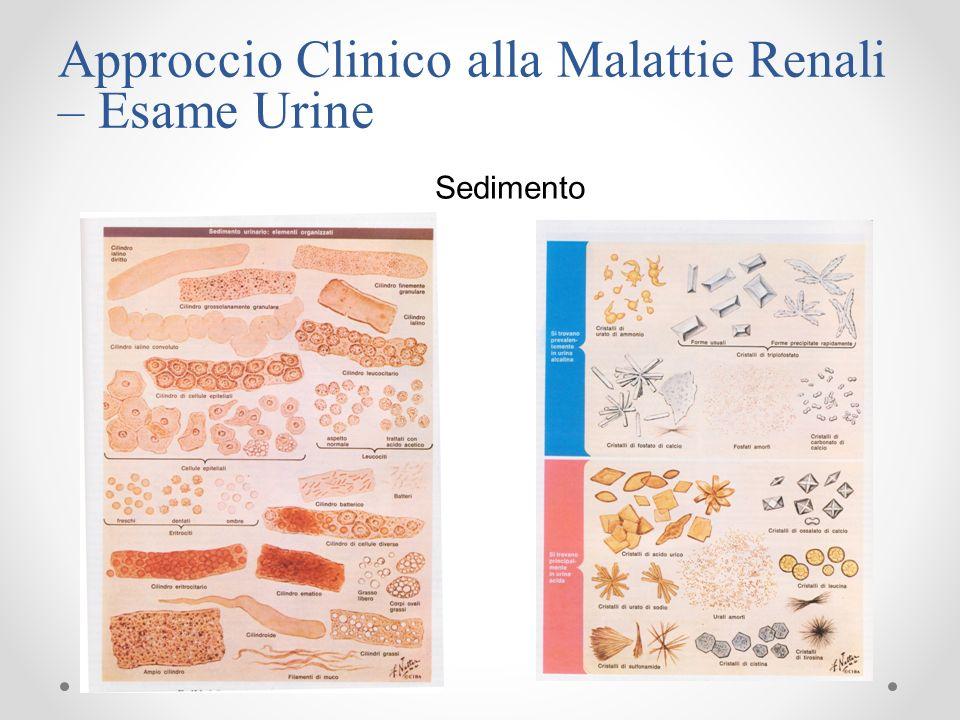 Approccio Clinico alla Malattie Renali – Esame Urine Sedimento