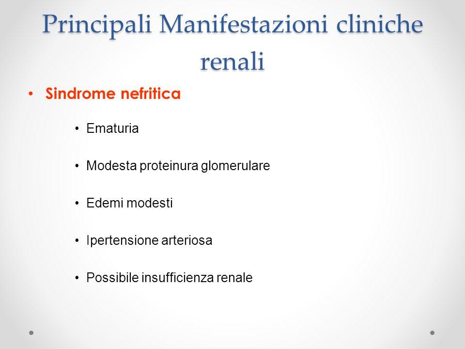 Principali Manifestazioni cliniche renali Sindrome nefritica Ematuria Modesta proteinura glomerulare Edemi modesti Ipertensione arteriosa Possibile in