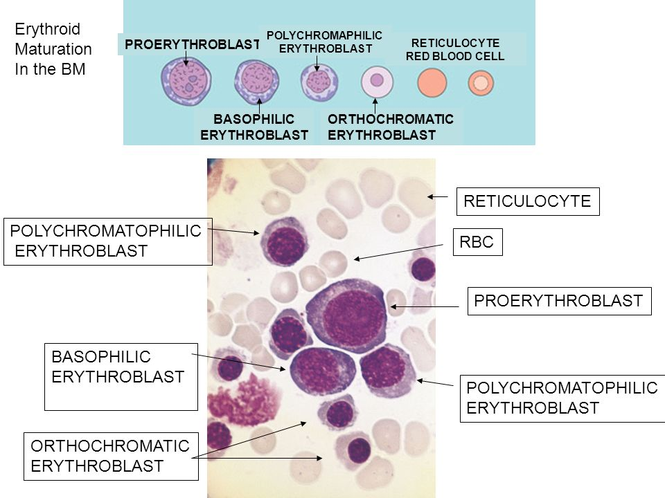 PROERYTHROBLAST BASOPHILIC ERYTHROBLAST POLYCHROMATOPHILIC ERYTHROBLAST POLYCHROMATOPHILIC ERYTHROBLAST ORTHOCHROMATIC ERYTHROBLAST PROERYTHROBLAST BASOPHILIC ERYTHROBLAST POLYCHROMAPHILIC ERYTHROBLAST ORTHOCHROMATIC ERYTHROBLAST RETICULOCYTE RED BLOOD CELL RETICULOCYTE RBC Erythroid Maturation In the BM
