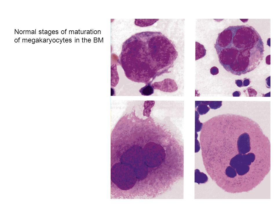 MYELOBLAST PROMYELOCYTE MYELOCYTE METAMYELOCYTE NEUTROPHIL Normal maturation in the BM of granulocyte precursors